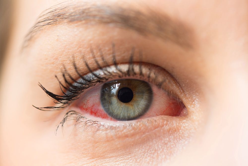 dry eye symptom red eyes london